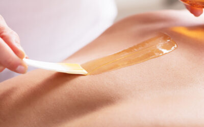 Why More Men Are Investing in Hair Removal Treatments